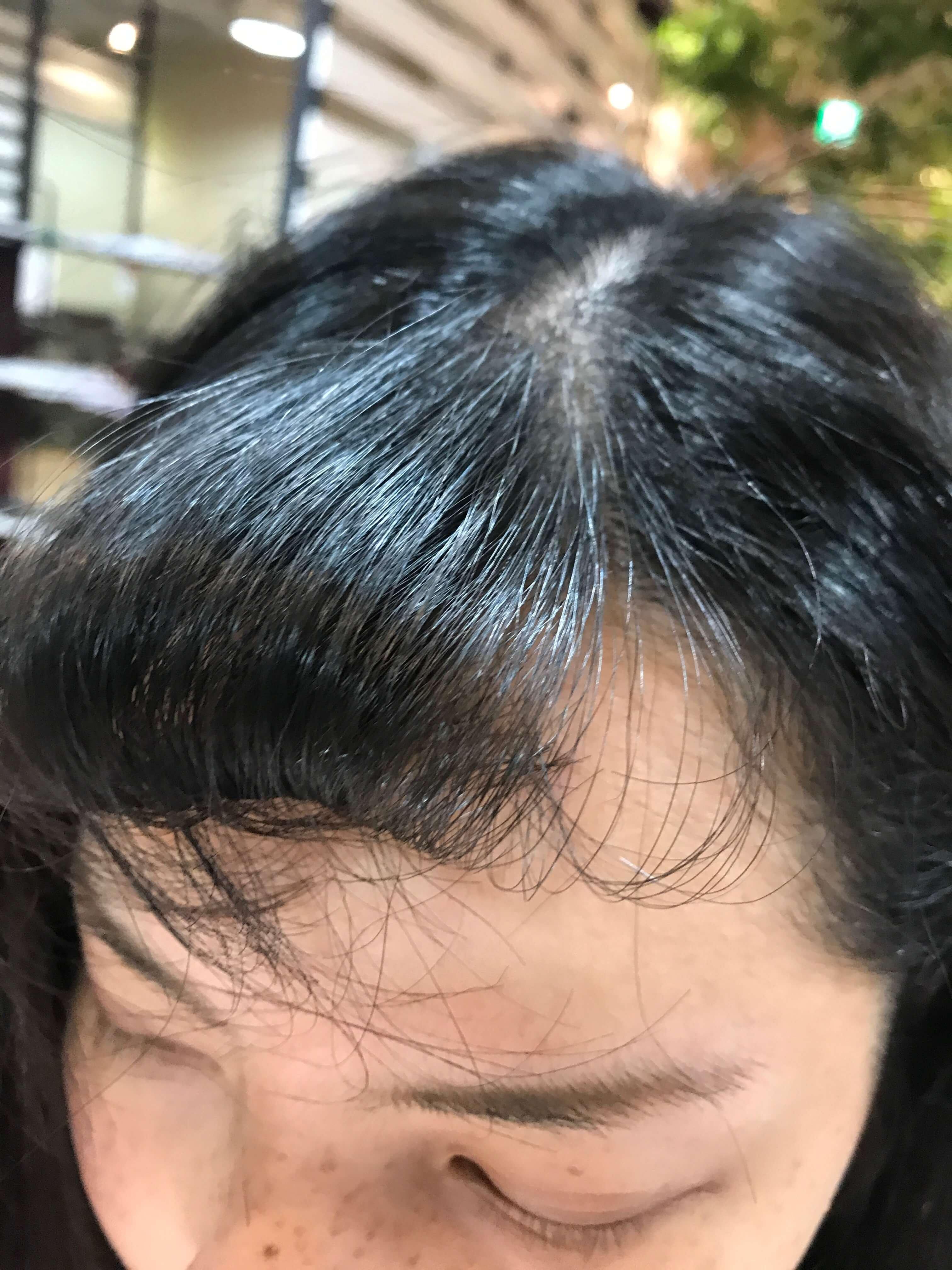 縮毛矯正の前髪ピーン問題